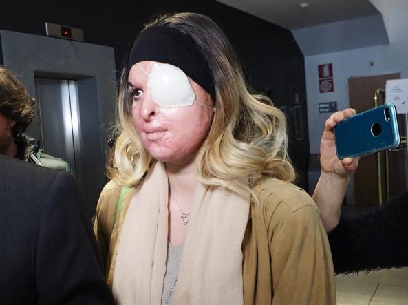 Eddy Tavares condannato a 10 anni per aver sfregiato l'ex Gessica Notaro